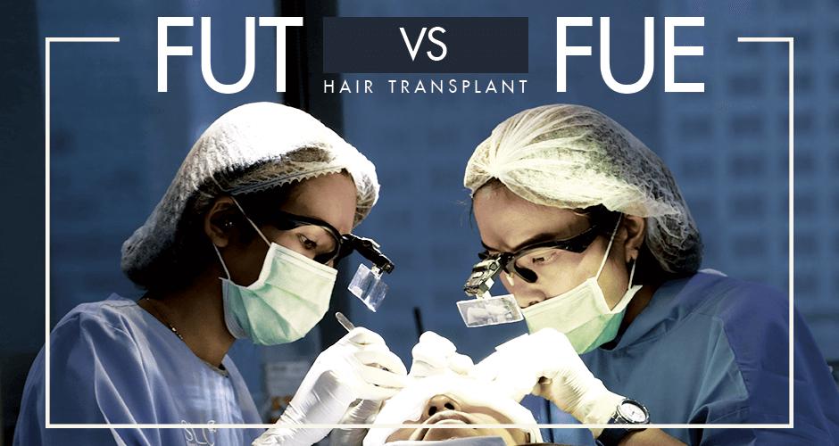 FUT VS FUE (Hair Transplant)