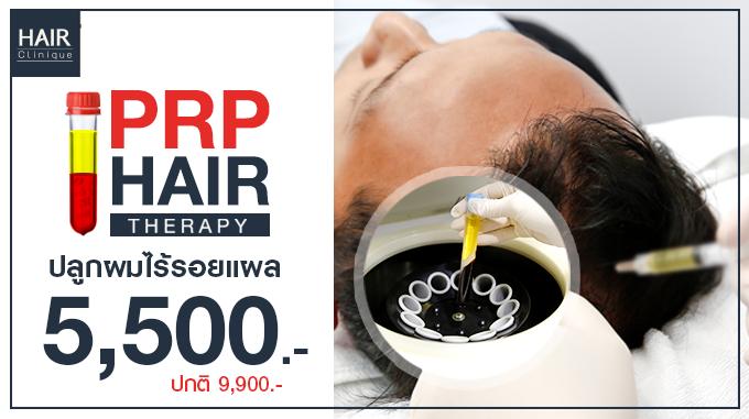 ปลูกผมไร้รอยแผล PRP Therapy 5,500.- (ปกติ 9,900.-)
