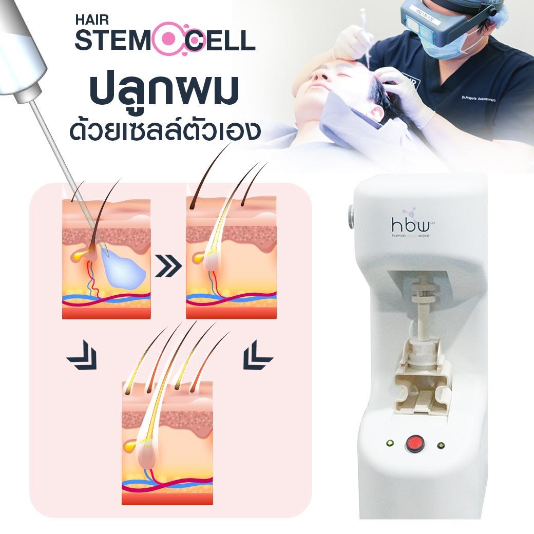 ปลูกผม Stem Cell แก้ผมร่วงหลังคลอด