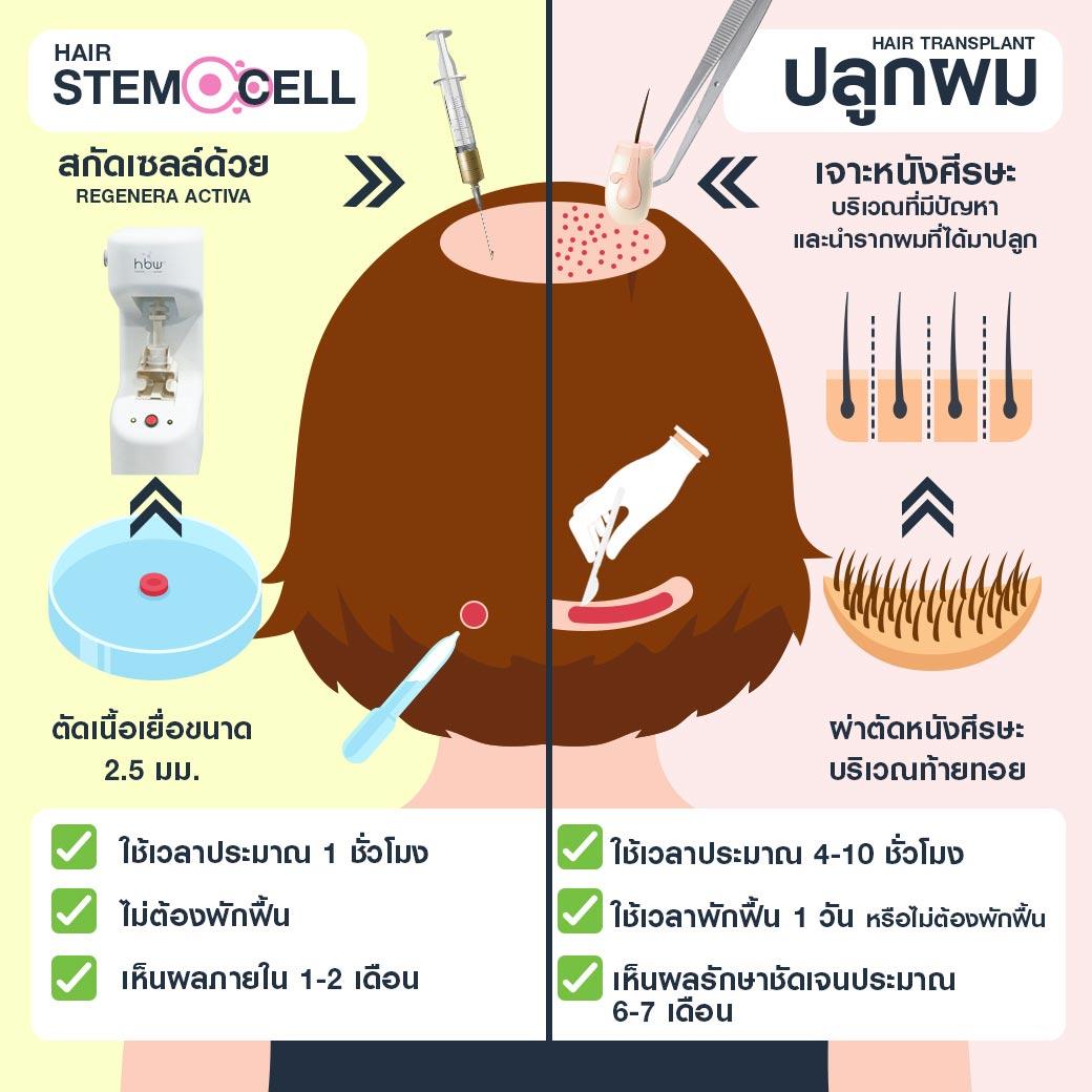 ปลูกผม Stem Cell ต่างกับ ปลูกผมย้ายเซลล์รากผม อย่างไร